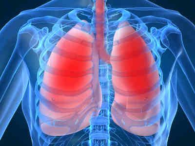29/ Bệnh viêm phổi